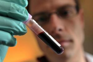 misurare quantità emoglobina